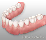 All About Removable Dentures