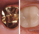 Gold or Porcelain, Which Crown Is Right for You?