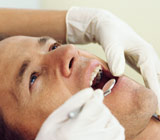 Warning signs of Gum Disease