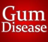 The Dangers of Periodontal Disease