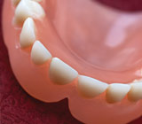 Are Immediate Dentures a Solution?