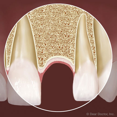 You Have Options for Replacing a Lost Tooth