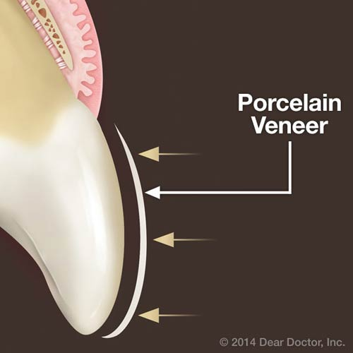 4 Ways Porcelain Veneers can Improve Teeth Appearance