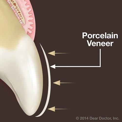 4 Ways Porcelain Veneers can Improve Teeth Appearance
