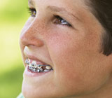 The Value of a Two-Phased Approach to Orthodontics