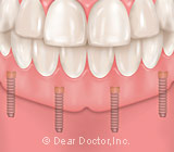 The Inexpensive Solution for Loose Dentures
