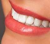 You Can Whiten Your Teeth at Home, but…
