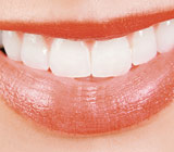 Bleaching, an Effective Method for Whitening Teeth