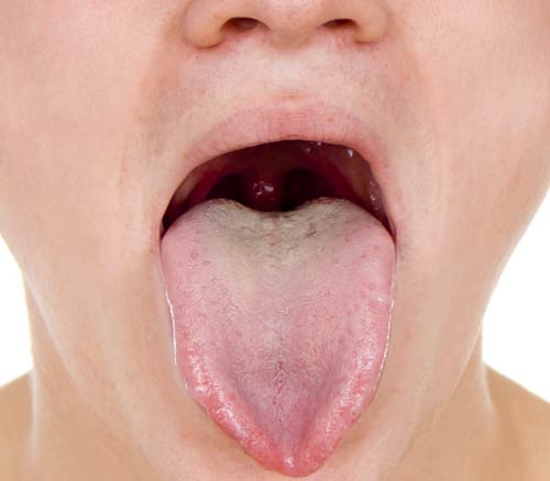 The Mouth's Natural Antibiotics