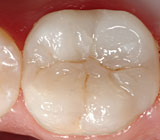Tooth-Colored Fillings Offer Invisible Strength & Protection