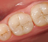 Tooth-Colored Fillings: How Things Have Changed!