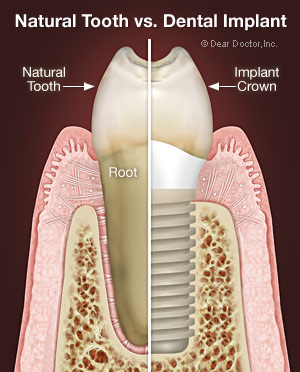Dental Implants - Your Best Option for Replacing Missing