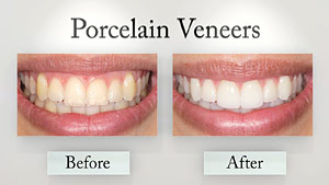 Porcelain veneer before and after.