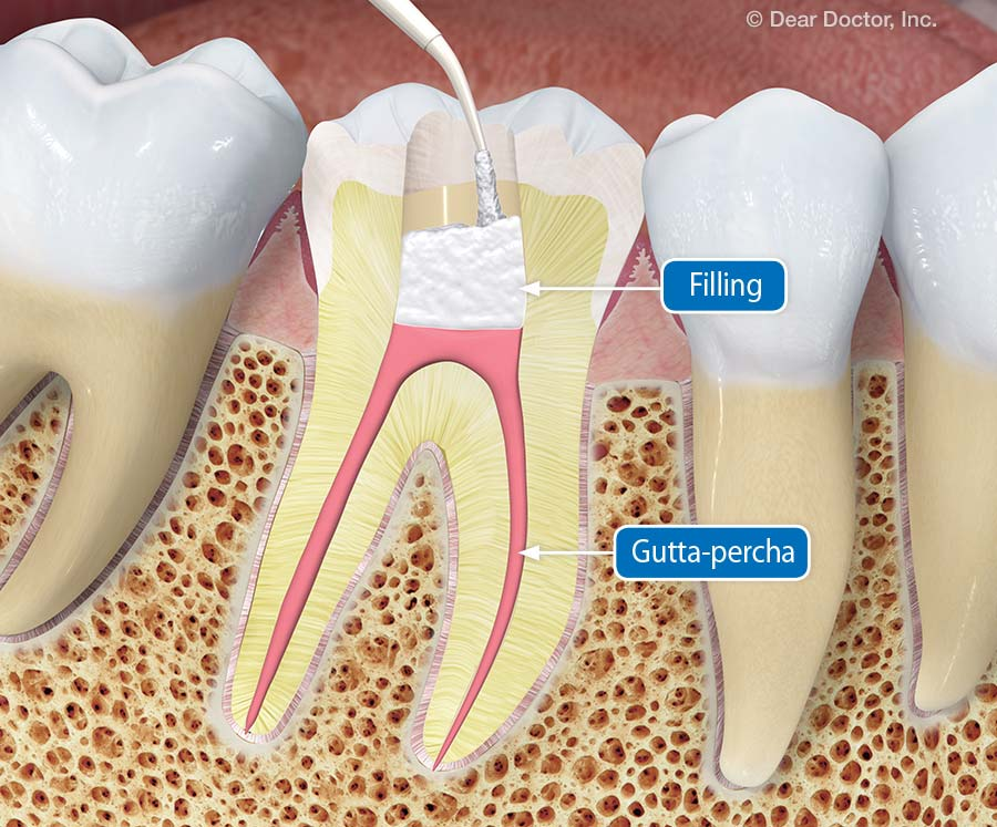 Root Canal Treatment What You Need To Know
