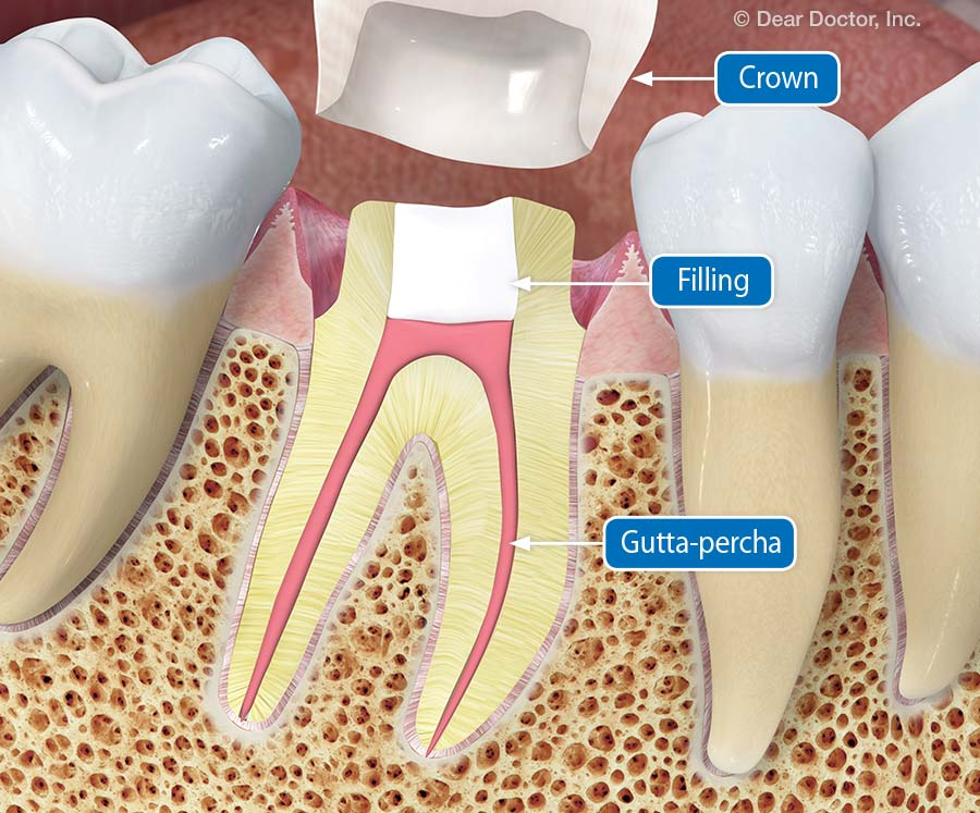 Prepared tooth.