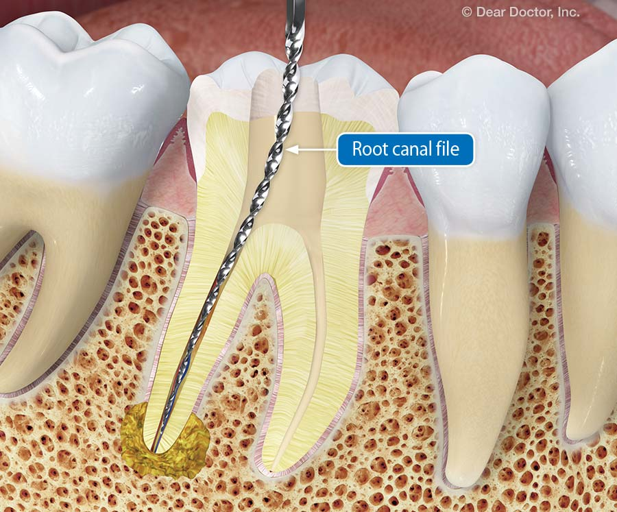 Root canal file.