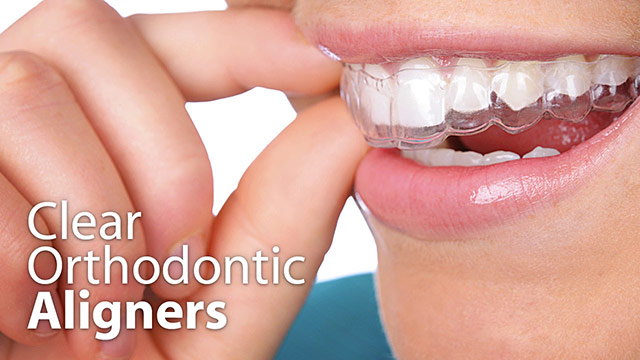 Clear Orthodontic Aligners Video