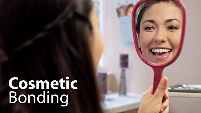 Cosmetic Bonding Video
