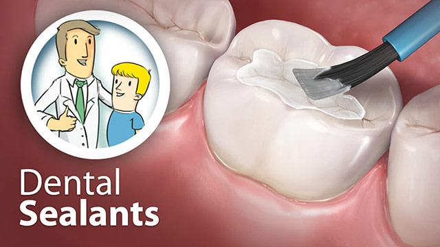 Dental Sealants Video