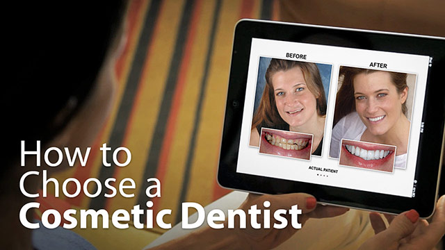 How To Choose A Cosmetic Dentist Video