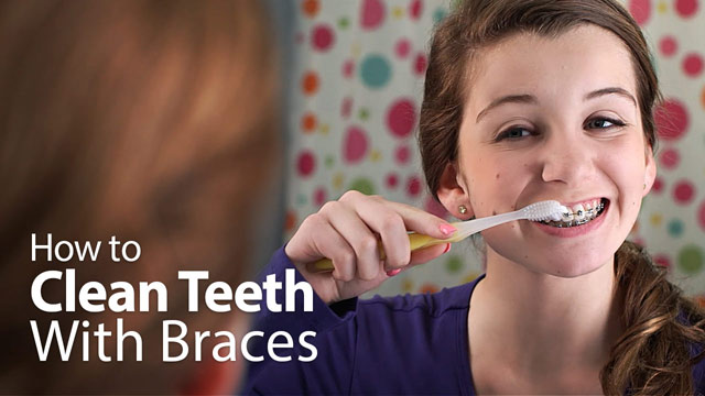 How to Clean Teeth With Braces Video