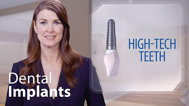 Dental Implants - High-Tech Teeth Video