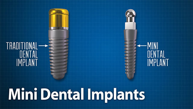 Mini Dental Implants Video