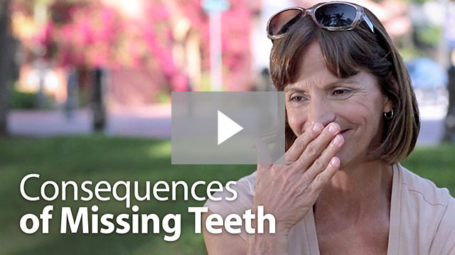 Consequences of Missing Teeth | Dental Implants