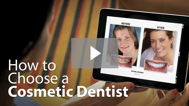 Preview of our video titled How to Choose a Cosmetic Dentist