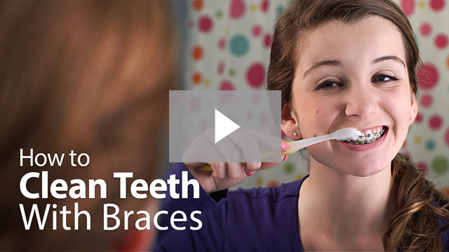 Fashion style How to teeth clean when wearing braces for woman