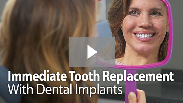 Immediate Tooth Replace with Dental Implants