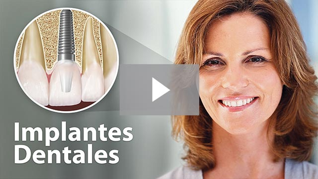 Implantes Dentales (Dental Implants)