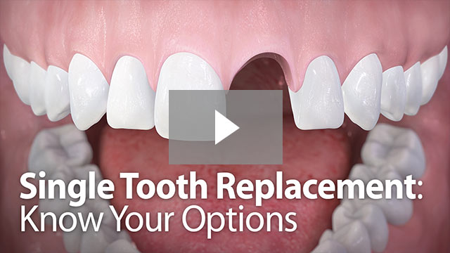 single tooth replacement video thumbnail