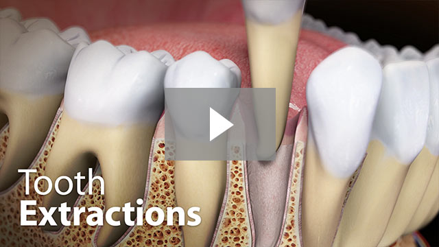 Tooth Extractions in Houston, TX