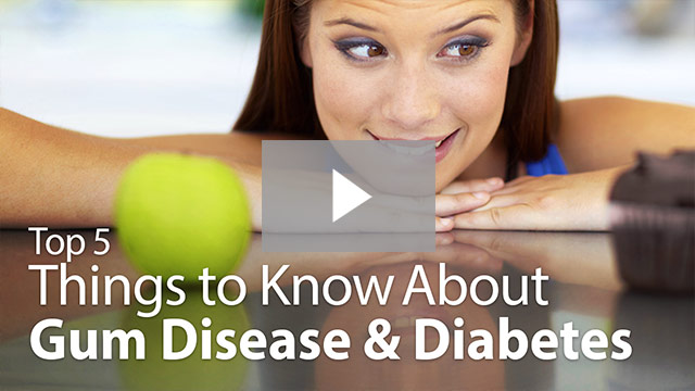 things to know about gum disease video thumbnail