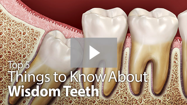things to know about wisdom teeth