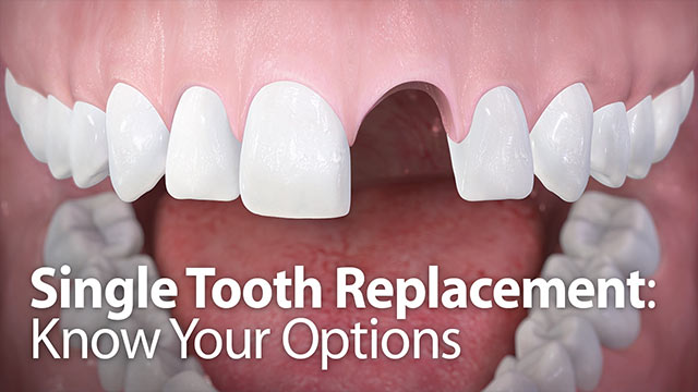 Single Tooth Replacement Video