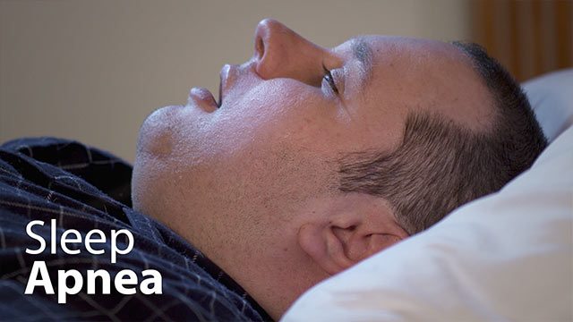 Sleep Apnea Video