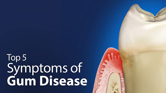 Top 5 Symptoms of Gum Disease Video