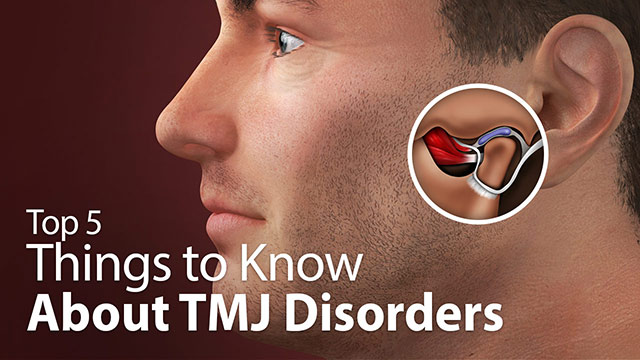 Top 5 Things to Know About TMJ Disorders Video