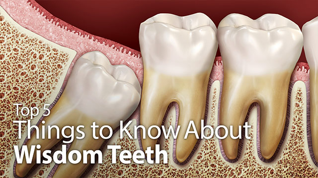 Top 5 Things to Know About Wisdom Teeth Video