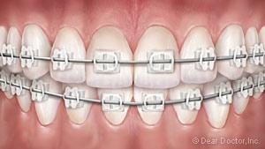 Ceramic braces.