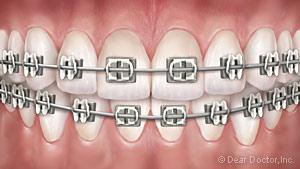 Metal braces.
