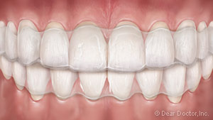 An illustration of what Invisalign looks like on teeth.