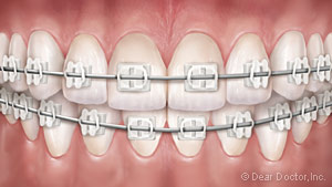 An Illustration of what clear braces look like on teeth.