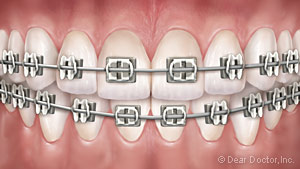 An illustration of what traditional metal braces look like on teeth.
