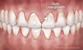 Gum Overgrowth.