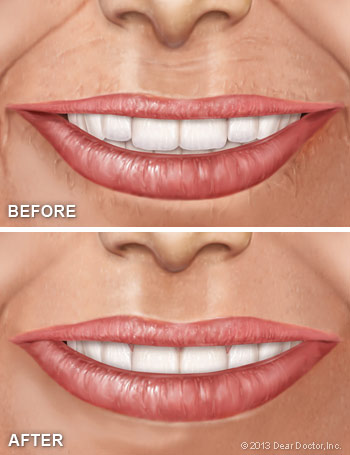 Cosmetic fillers before and after.
