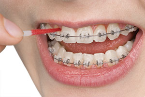 Interdental toothbrush.