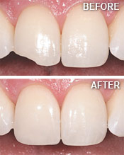 Before and After Tooth Bonding.